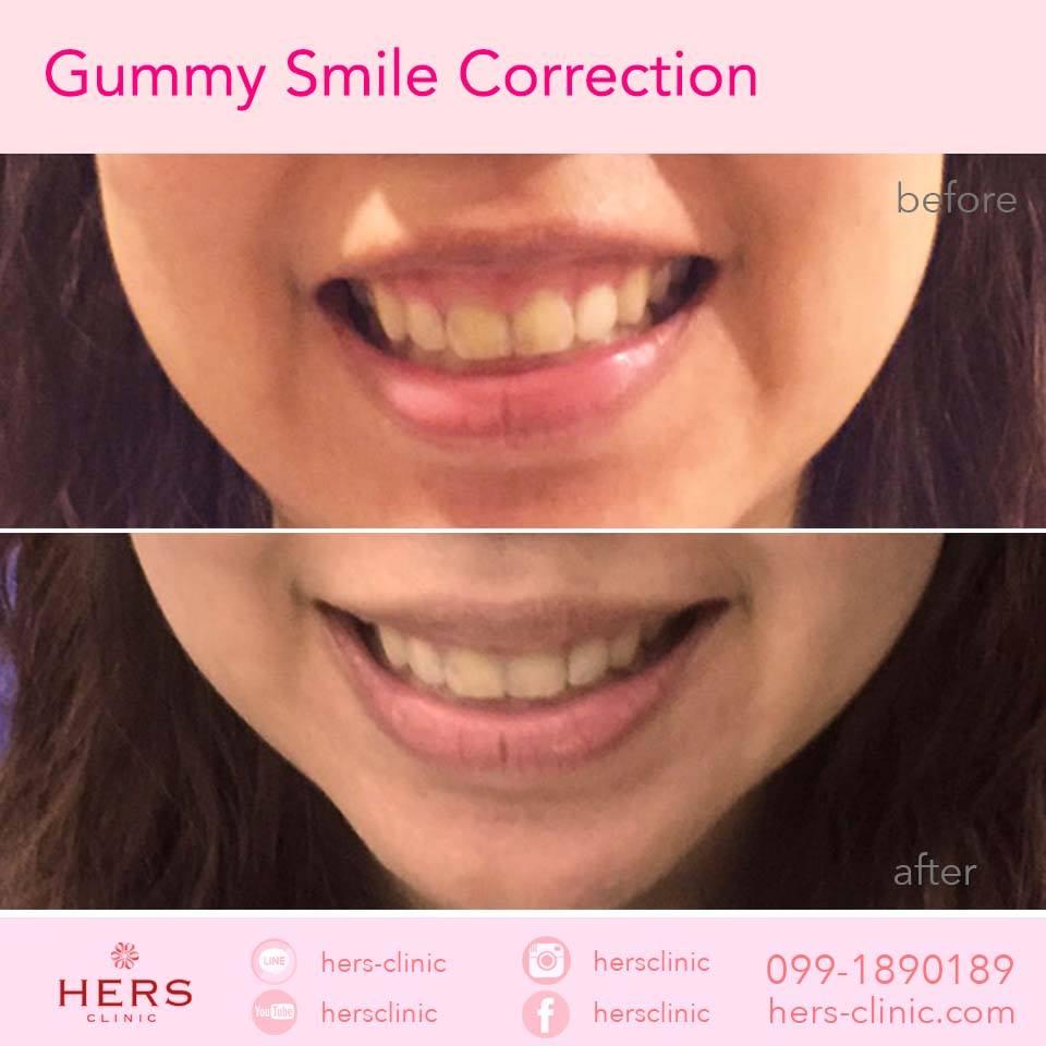 ยิ้มเห็นเหงือก Gummy smile