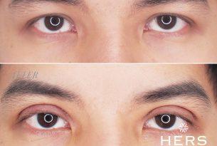 รีวิวศัลยกรรมตาสองชั้น