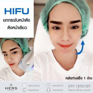 รีวิวHIFU-HERSclinic