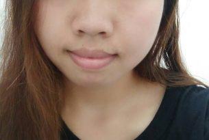 ศัลยกรรมตาสองชั้น ชั้นตาสวย