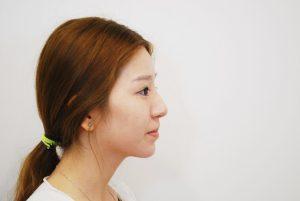 ก่อนทำลดแก้ม เสริมคาง Buccal fatpad removal and Chin augmentation