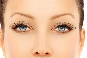 ได้เวลาที่คุณควรตัดแต่งหนังตาบน ศัลยกรรมตาสองชั้น