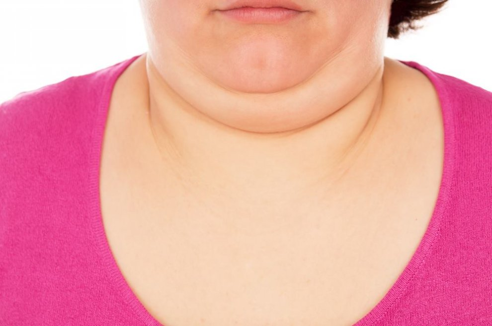 How To Lose Neck Fat 990×657