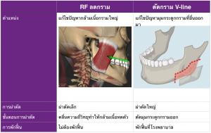 ผ่าตัด RF ลดกล้ามเนื้อกราม