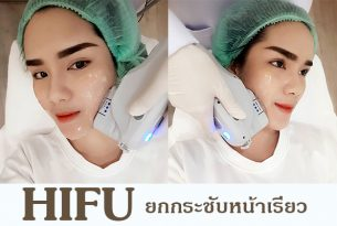HIFU ยกกระชับ ปรับหน้าเรียว โดยไม่ต้องผ่าตัด
