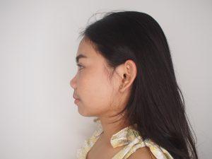 หลังผ่าตัดไขมันกระพุ้งแก้มและผ่าตัด RF ลดกล้ามเนื้อกราม