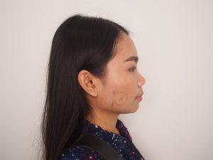 บริเวณที่ตัดไขมันกระพุ้งแก้มและผ่าตัด RF ลดกล้ามเนื้อกราม
