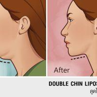Doublechin liposuction