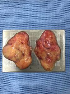 ก้อนไขมันกระพุ้งแก้ม ที่ผ่าตัดนำออกมา
