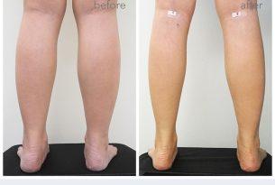SLIM LEG นวัตกรรมศัลยกรรมขาเรียว