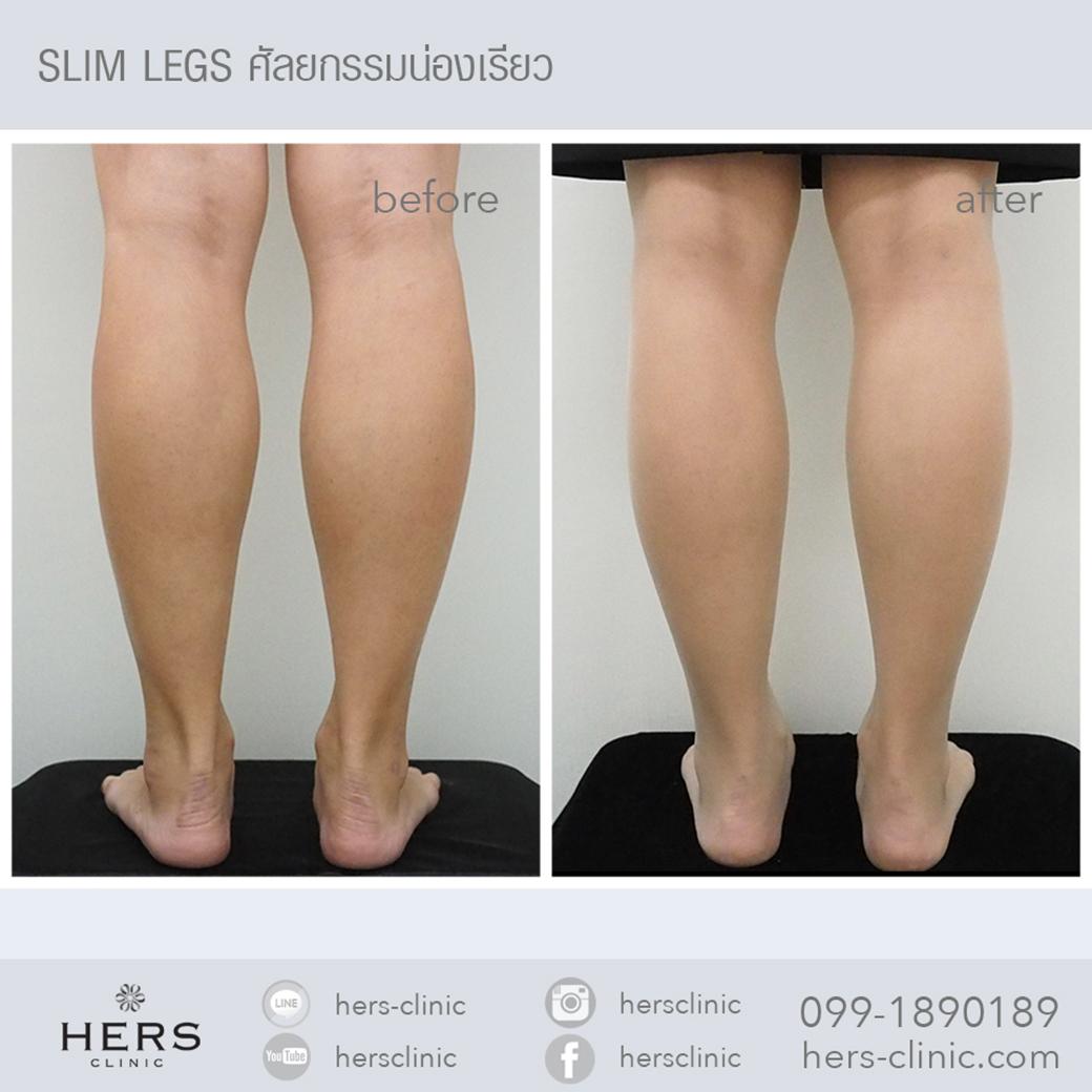 Slim legs ลดน่อง น่องเรียว