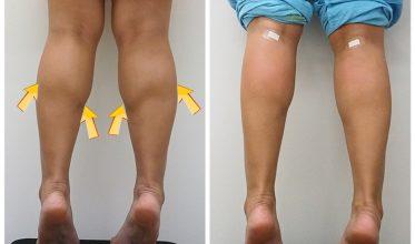 ขาสวย ด้วยการผ่าตัด SLIM LEGS ศัลยกรรมน่องเรียว