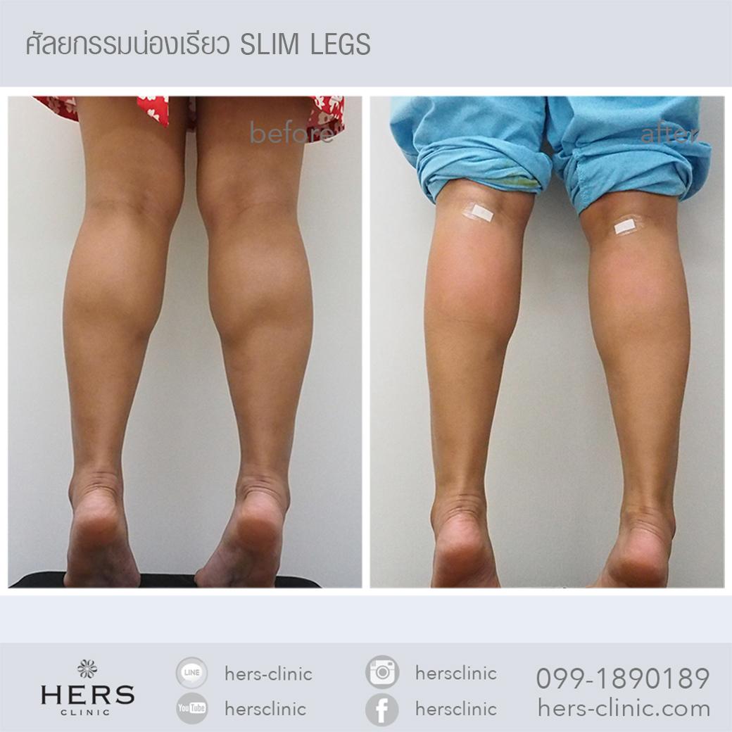 Slim legs ลดน่อง
