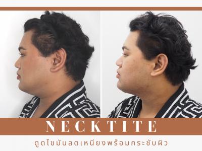 Necktite
