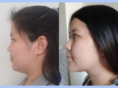 Before – After Necktite