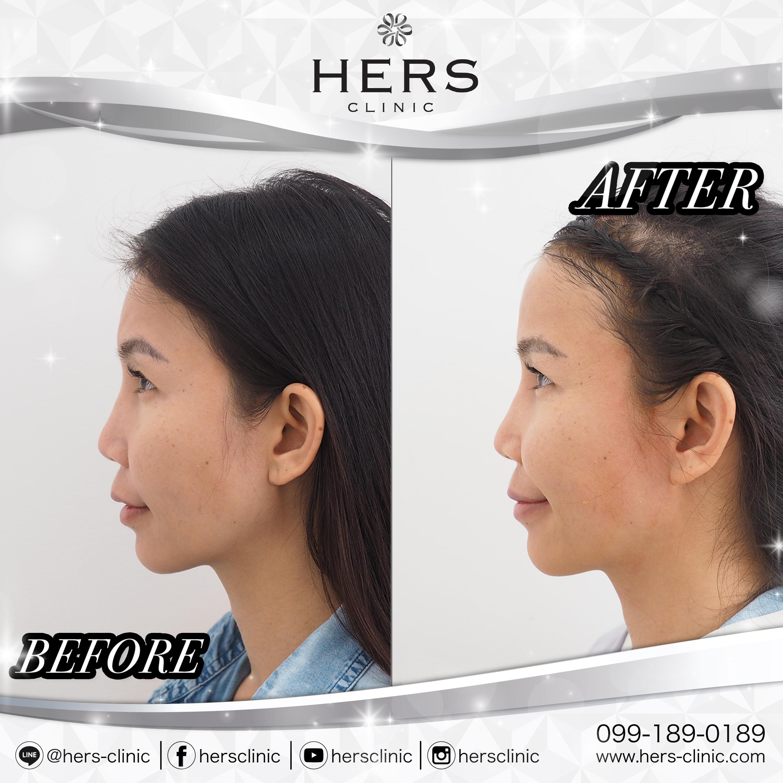 เสริมหน้าผาก HERS clinic